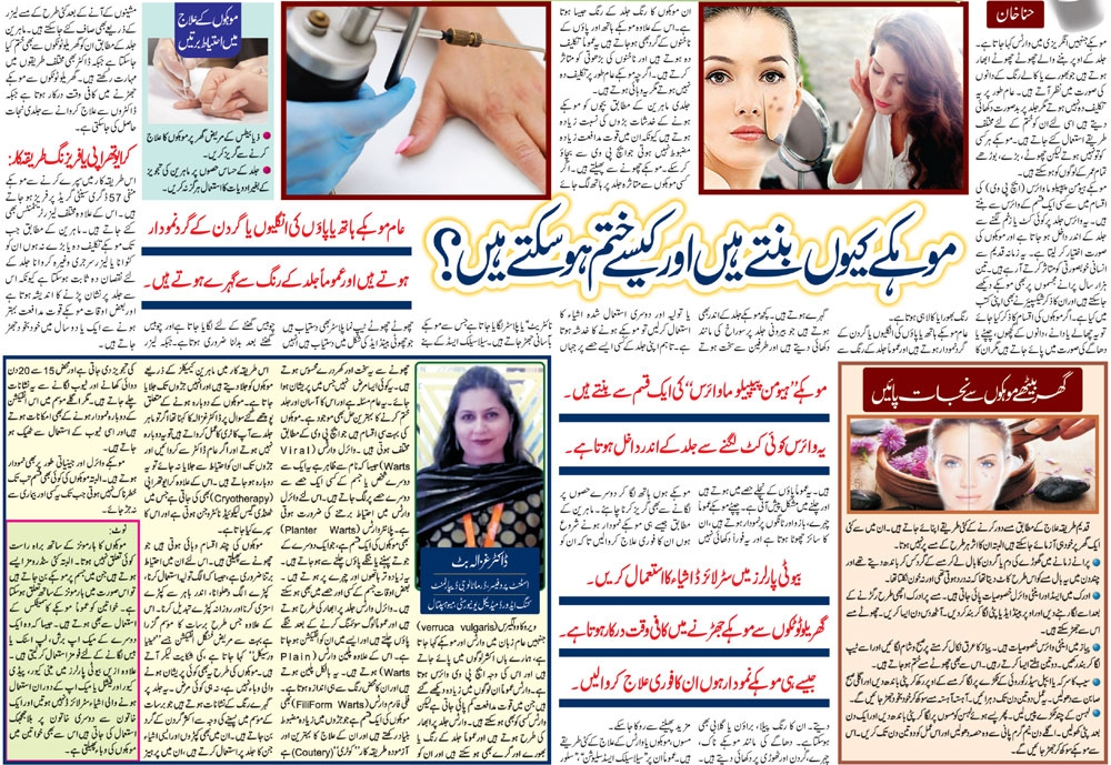 All About Warts in Urdu & English Symptoms, Causes, Preventions & Treatment