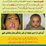 Free Plastic Surgery of Cleft Lip and Cleft Palate in Lahore